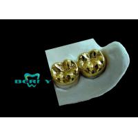Yellow Gold Full Cast Metal Crown High Casting Accuracy ISO13485