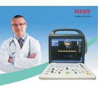 High Quality Portable 4D/3D Color Ultrasound with CE China Manufacturer