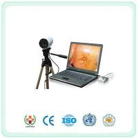 SY9800 Portable Digital Electronic Colposcope